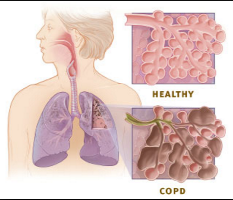 How healthy lungs function , Developing of COPD, Lungs