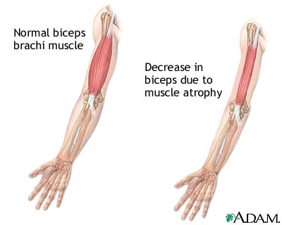 muscle atrophy. - thinglink, Muscles