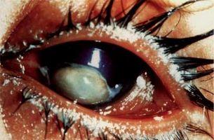 Night Blindness - ThingLink