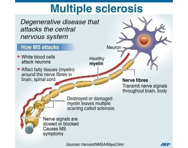 an introduction to the issue of multiple sclerosis
