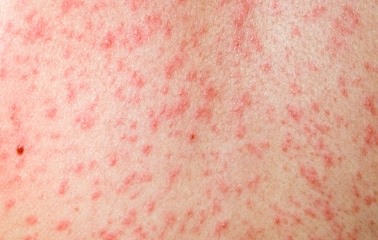Disease lliswerry 9ab thinglink for Fish oil rash